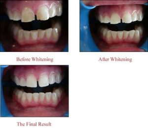 Case 1: tooth whitening