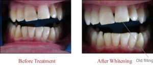 Case M: tooth whitening