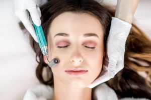 Dermal Roller and Mesotherapy Wimbledon